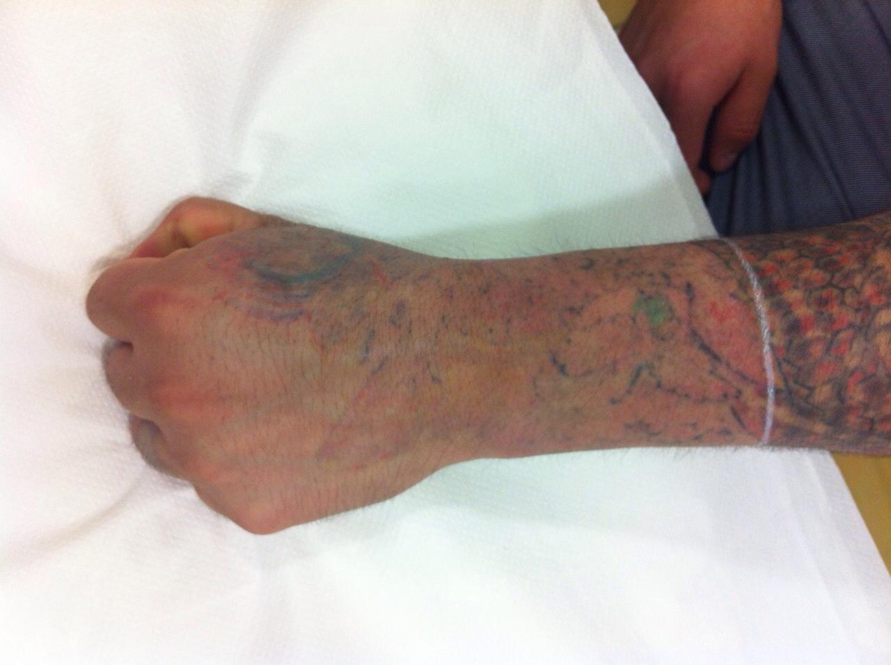 Como arreglar las cicatrices del acné sobre la persona las revocaciones