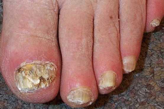 Las pastillas dentro al hongo de las uñas